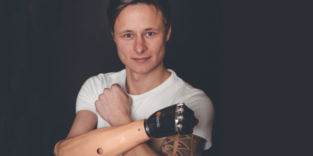 Jungunternehmer kreiert verblüffend menschliche Prothesen