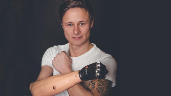 Philipp Barluschke, Gründer von BarluParts 3D, hat unzählige Prothesenschäfte konstruiert, ausprobiert und wieder verworfen bis das Produkt marktreif war.