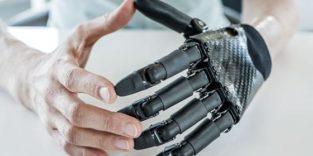 Hightech-Prothesen für jede Handgröße