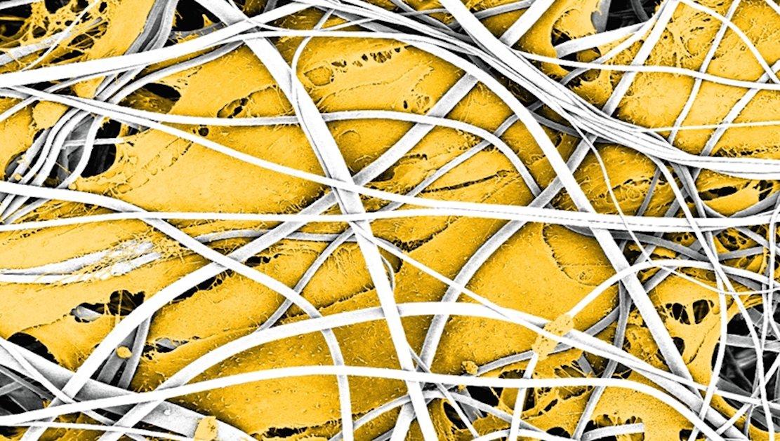 Bereits nach sieben Tagen verschmelzen die Zellen im Gerüst (weiss) miteinander und entwickeln sich zu länglichen Muskelfasern (gelb), wie diese eingefärbte elektronenmikroskopische Aufnahme zeigt.