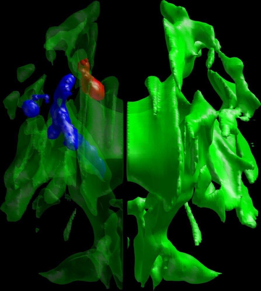 In den farbig markierten Arealen leiten die Gehirne von Frühaufstehern und Nachteulen Signale unterschiedlich stark weiter.