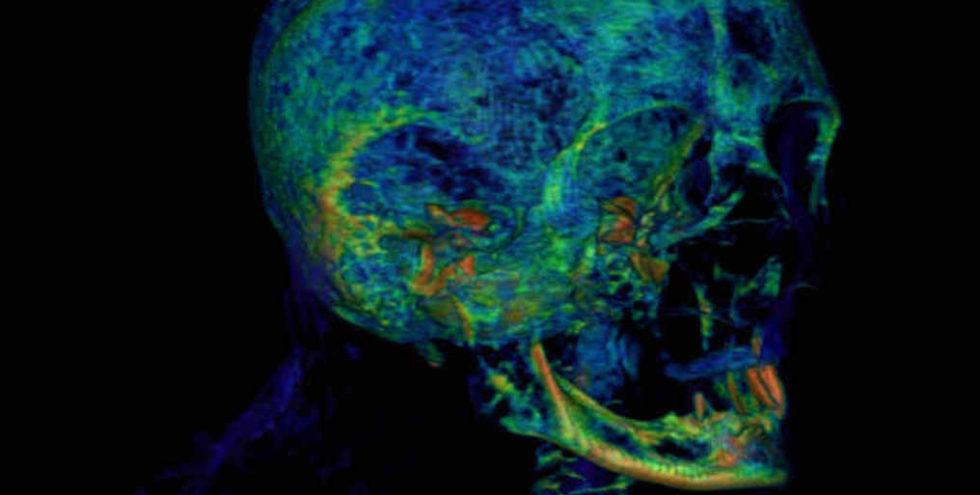 Frei im Raum schwebende, dreidimensionalen Bilder der Mumie können von allen Seiten betrachtet werden.