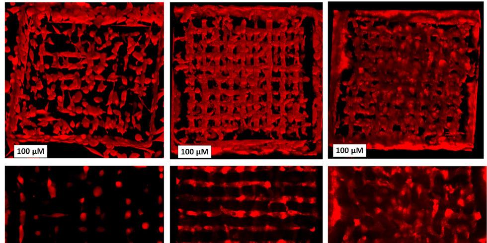 Schwarz-rote Darstellung übe die Ausbreitung der lebenden Zellen in der Matrix