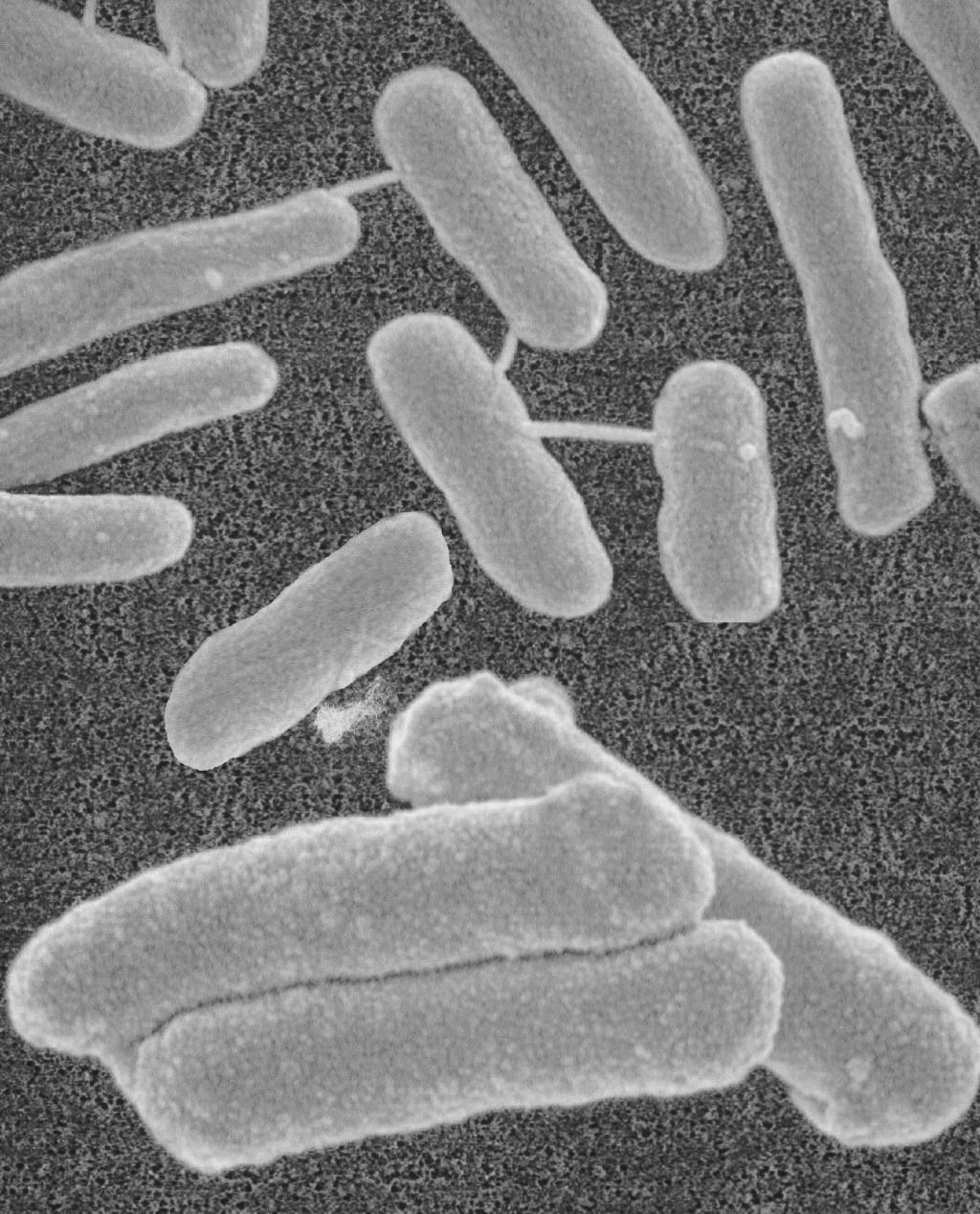 Als natürlicher Bestandteil des Bodens kommen Legionellen in geringen Konzentrationen in jeder Wasserversorgung vor. Sie können sich nur im Inneren eines Biofilms vermehren, sind auf bestimmte Aminosäuregruppen aus toten Zellen angewiesen und überleben im Inneren des Biofilms auch Temperaturen von >70 °C und chem. Desinfektionsmittel. Bild: Seccua GmbH