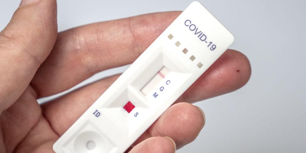 Antikörpertests gegen SARS-CoV-2 erobern den Markt. Foto: panthermedia.net/Kalve