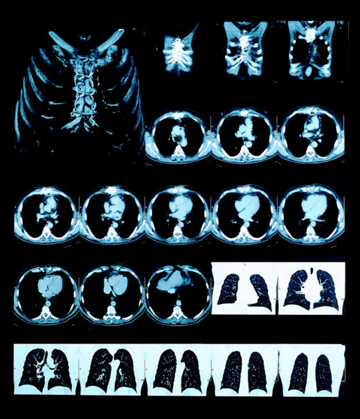 Anonymisierte Patienten-Bilder erhalten die Forschenden von kooperierenden Kliniken. Die KI lernt, kleinste Anomalien auf den Aufnahmen zu erkennen und zu deuten. Foto: Panthermedia.net/sudok1